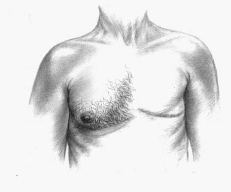 male_mastectomy_web